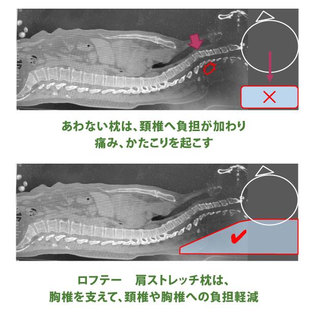 脊椎アライメント保持